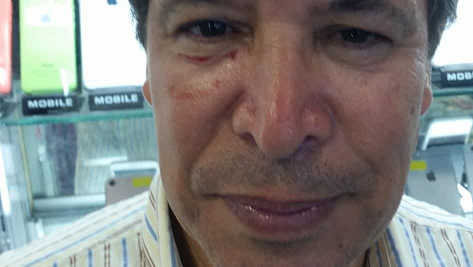 Lawyer Abdelaziz Nouaydi, after a policeman punched him in the face when breaking up a small sit-in in Rabat.